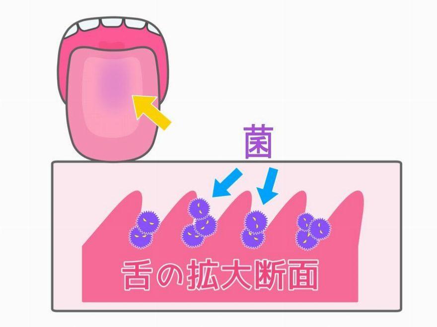 口臭の原因にもなる舌苔ってなに?